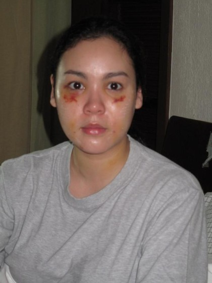 Claudine Barretto battered wife