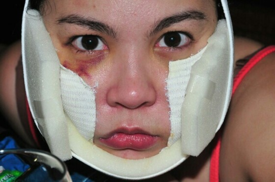 Claudine Barretto battered wife photo
